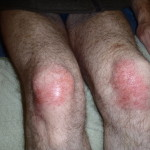 Shaun has burned his knees with Concrete